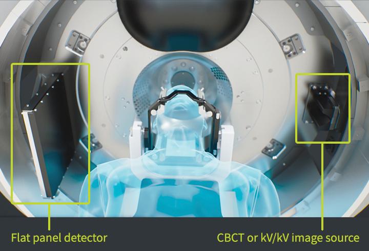 rti-kv-imaging